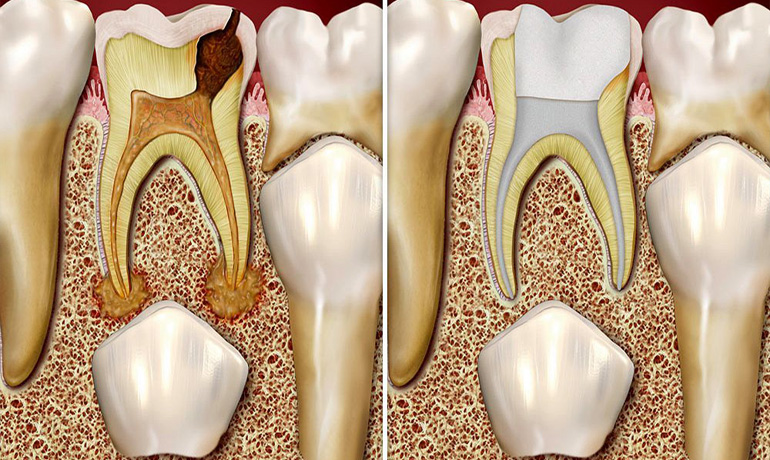 Root Canal Treatment for Kids in Vizag