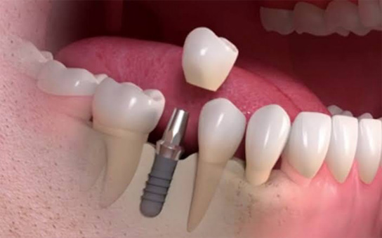 Dental Implant Clinic in Visakhapatnam